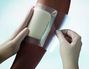 medicazioni in silicone