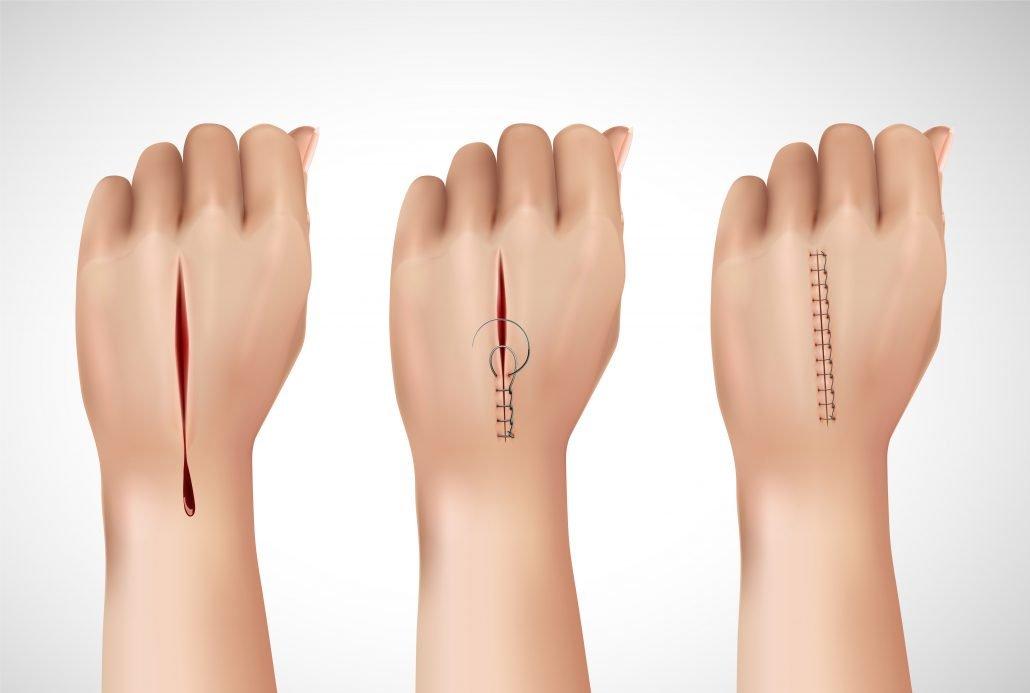 pressione negativa ferita post operatoria
